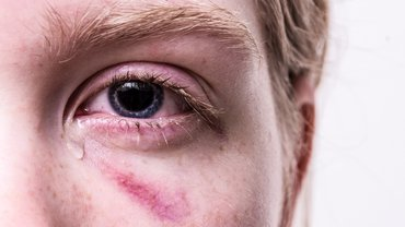 Frau Gewalt Träne Blessur Verletzung Angst Veilchen